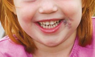 Veneuze malformatie bij mond